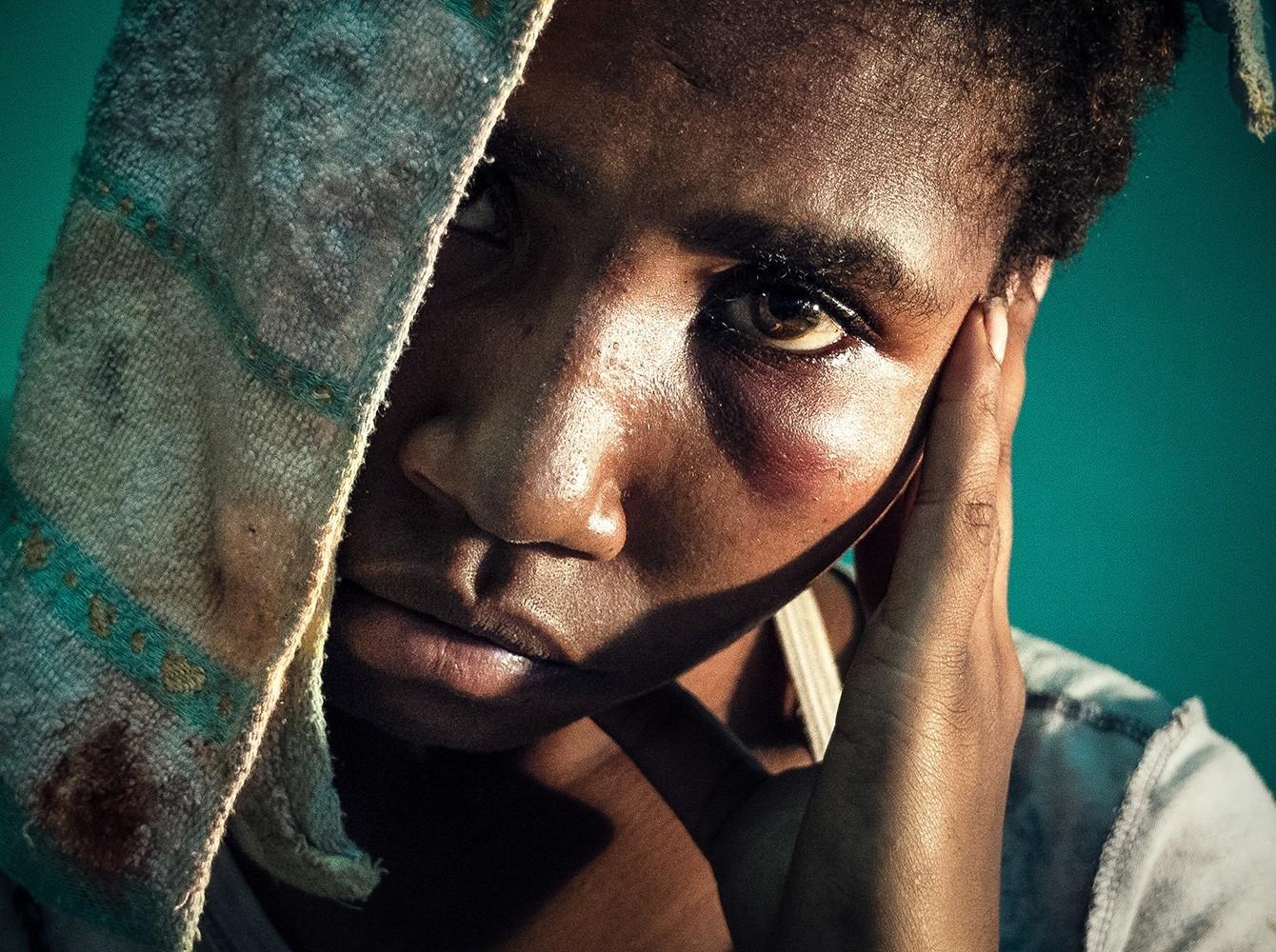 A survivor of sexual violence. Photo by Vlad Sokhin